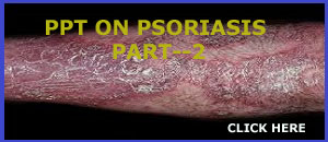 PPT ON  PSORIASIS PART-2