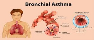 PPT ON BRONCHIAL ASTHMA