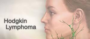 ppt on hodgkins lymphoma